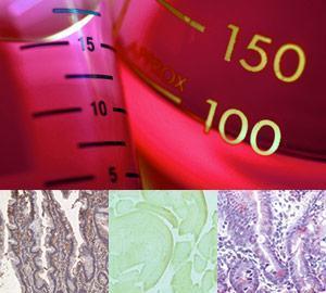 Antibody Products, Normal Serum, and Immunoglobulin